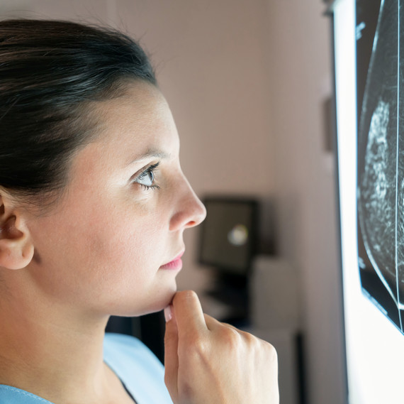 woman looking at x-ray results